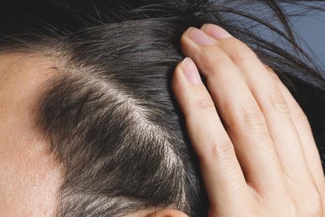 ミラブルはウルトラファインバブルで頭皮の皮脂を洗い流してくれます。